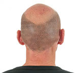 bald head before micropigmentation at rebecca fisher clinic in Masterton