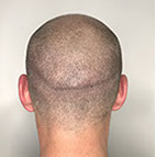 bald head after micropigmentation at rebecca fisher clinic in Masterton